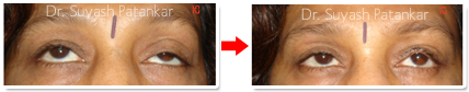 Soundarya LASER & Cosmetic Surgery Centre, Mumbai